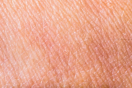 Dry skin closeup view