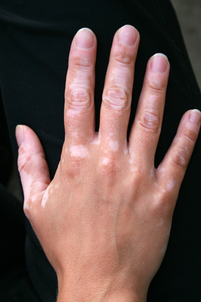 White spots on hand- Vitiligo