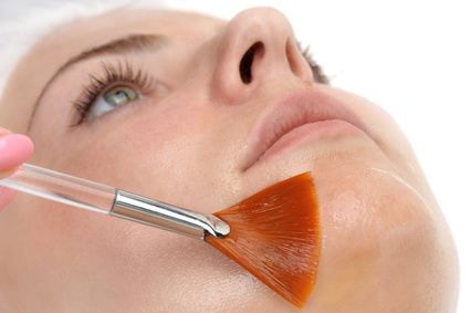 Chemical face peel application