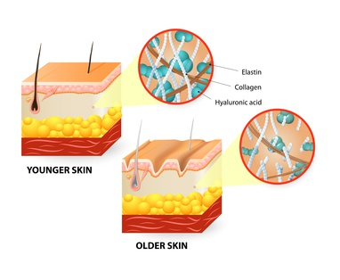 Aging skin diagram-Hyaluronic Acid declines with age